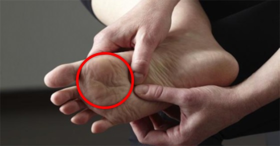 If you noticed this happening to your feet, you may have a serious health problem