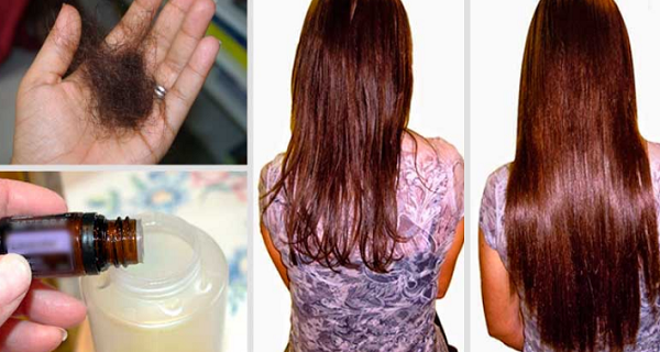 Add these 2 ingredients to your shampoo and say goodbye to hairloss forever!