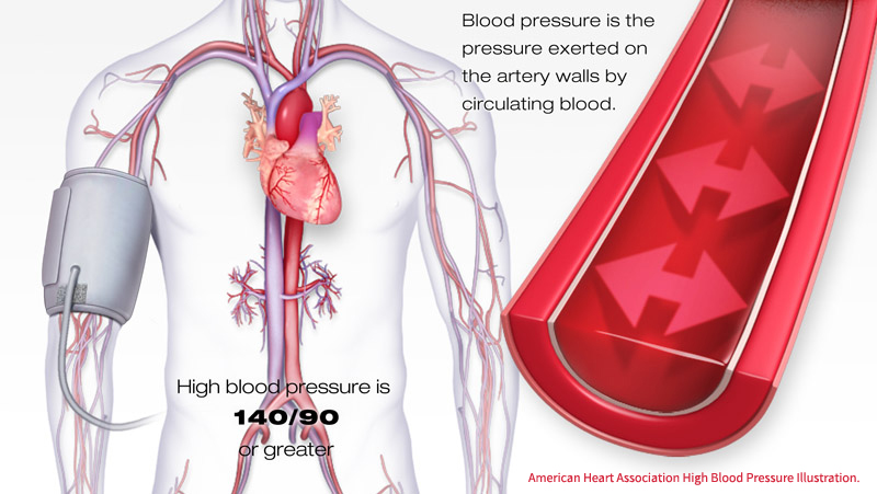 10 ways to reduce hypertension naturally and without medications