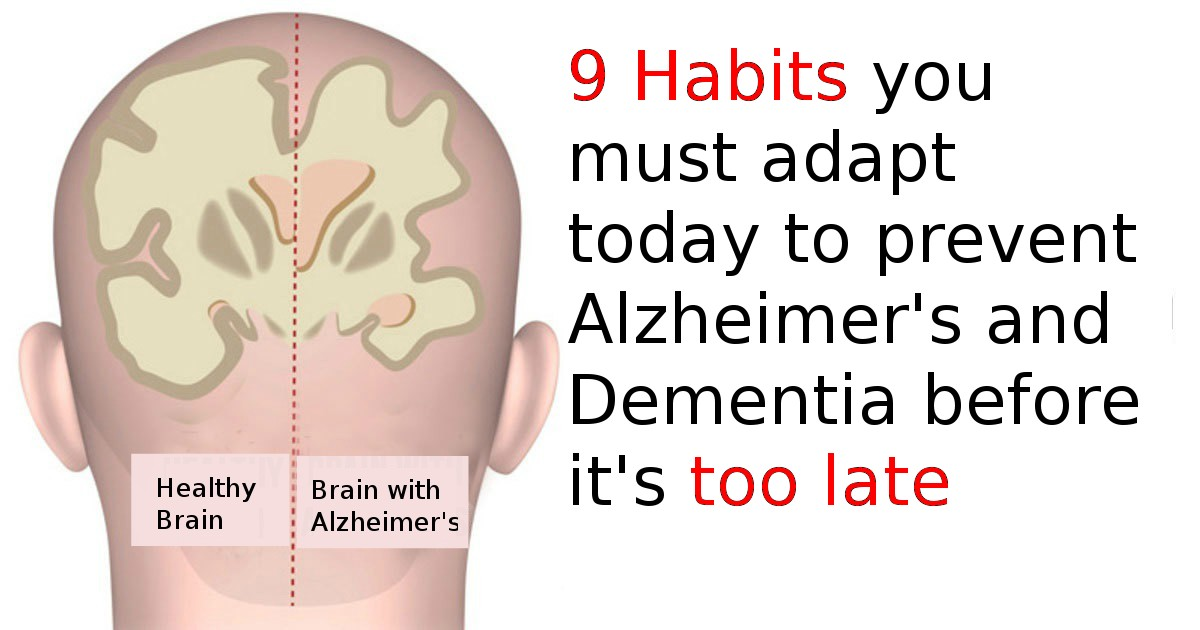 9 Habits you must adapt to prevent Alzheimer's and Dementia before it's too late