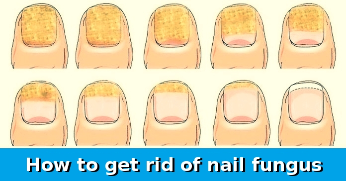 With only 2 ingredients you will be able to quickly and easily get rid of nail fungus
