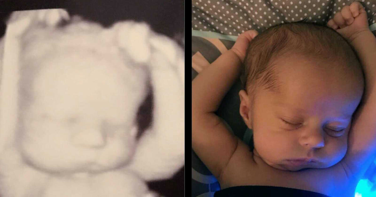 One week after birth, Mother compared an ultrasound image and combined the truth she missed