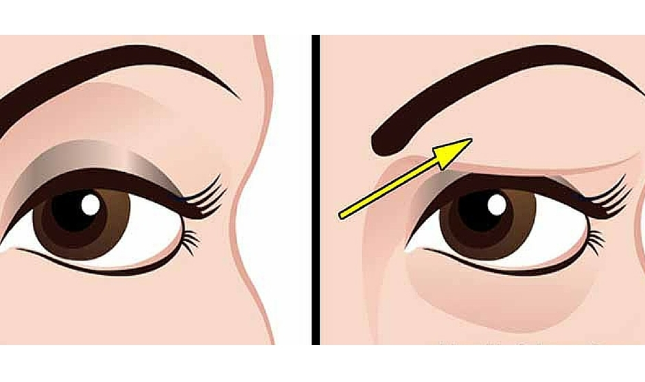 How to treat drooping eyelids naturally. The results are amazing!