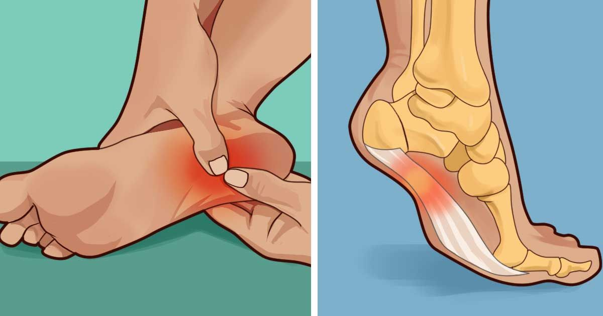 Does your heel hurt in the morning or whenever you stand? This is what you need to know