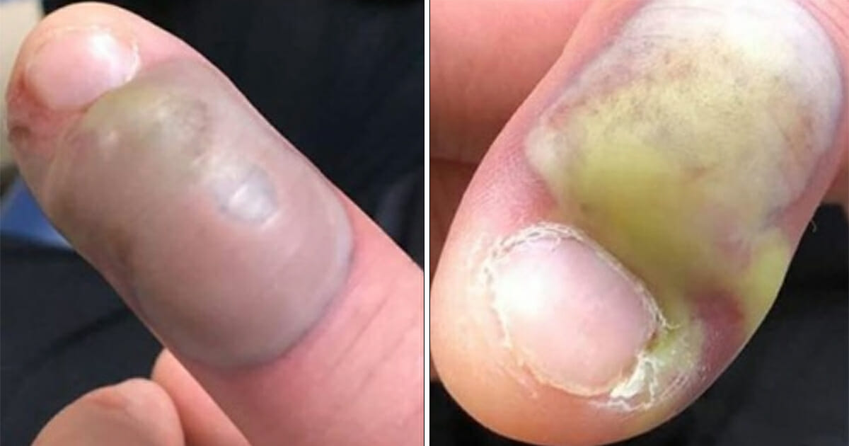 A man got hospitalized and underwent emergency surgery after receiving a fatal infection from biting his nails